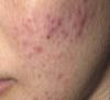 桜木町美容皮膚科にきび治療前